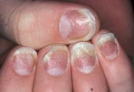 Nhận diện và điều trị bệnh vảy nến móng tay