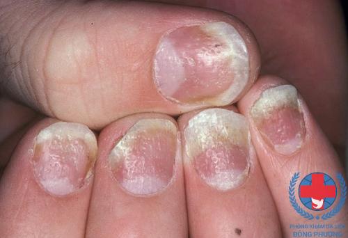 Nhận diện và chữa trị bệnh vẩy nến móng tay