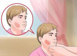 Biểu hiện zona thần kinh trên mặt