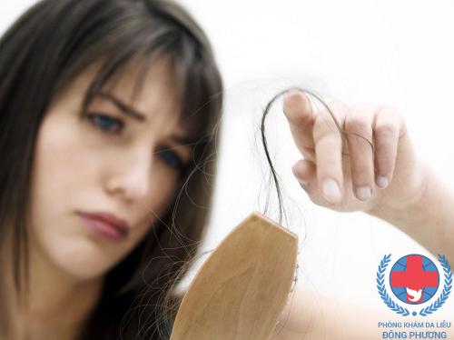 Bị rụng tóc sau sinh – cần chữa trị từ căn nguyên mới chóng khỏi