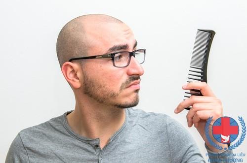 Rụng tóc ở nam giới nguyên nhân và cách khắc phục?