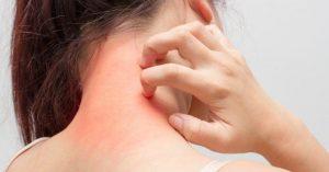 Bệnh ngứa toàn thân do những bệnh lý nào