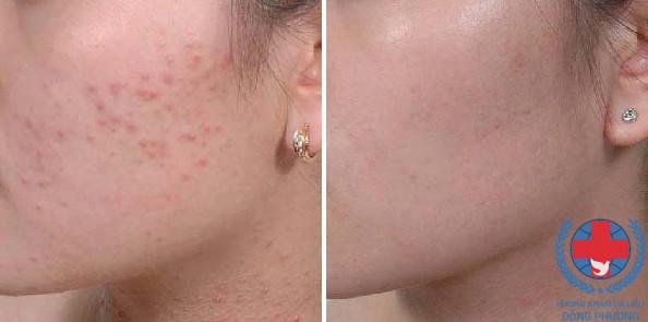 Cách chữa da mặt bị dị ứng mỹ phẩm