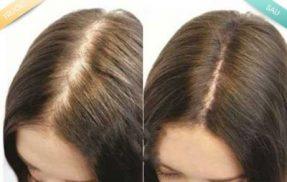 Bài thuốc đông y trị tụng tóc hiệu quả nhất