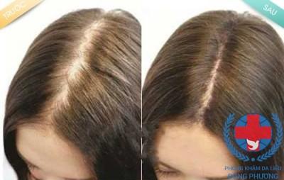 Đâu mới là thuốc trị rụng tóc hiệu quả nhất?