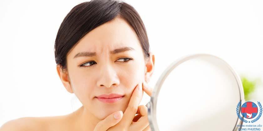 da nhạy cảm là gì – da nhạy cảm dễ nổi mụn?