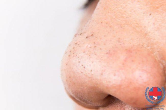 5 cách trị mụn đầu đen không làm đảm bảo tiếc ngẩn tiếc ngơ
