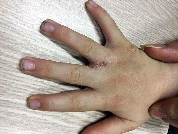 Bệnh ngứa kẽ ngón tay biện pháp khắc phục hiệu quả