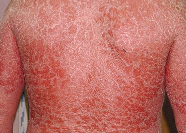 Vảy nến toàn thân – dấu hiệu cảnh báo bệnh lý nguy hiểm