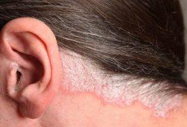 Biểu Hiện Bệnh Nấm Da đầu