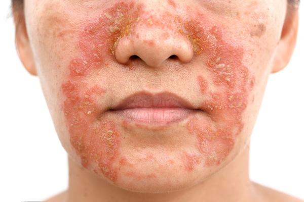 Điều trị bệnh viêm da từ dân gian hiệu quả không?