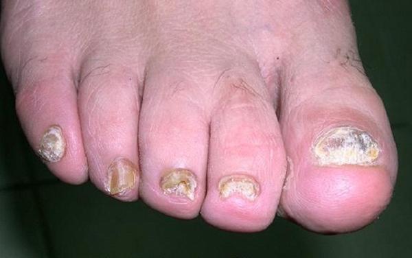 Triệu chứng bệnh nấm thường gặp