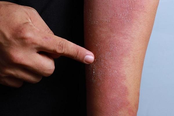 Trị viêm da cơ địa tại nhà nên hay không?
