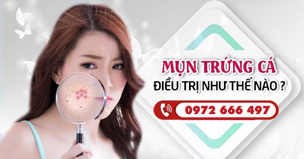 Thuoc Boi Tri Mun Trung Ca